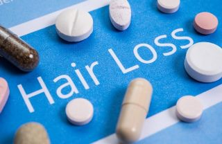Hair Loss Medication 800x521