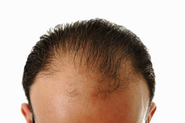 hair loss men small